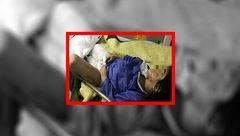 جزییات سرنوشت کودک شکنجه شده در مهاباد + عکس