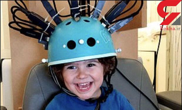 تولید کلاه اسکنر مغزی مخصوص رصد مغز کودکان