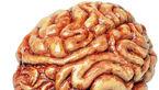 ارتباط چاقی با جریان خون در مغز