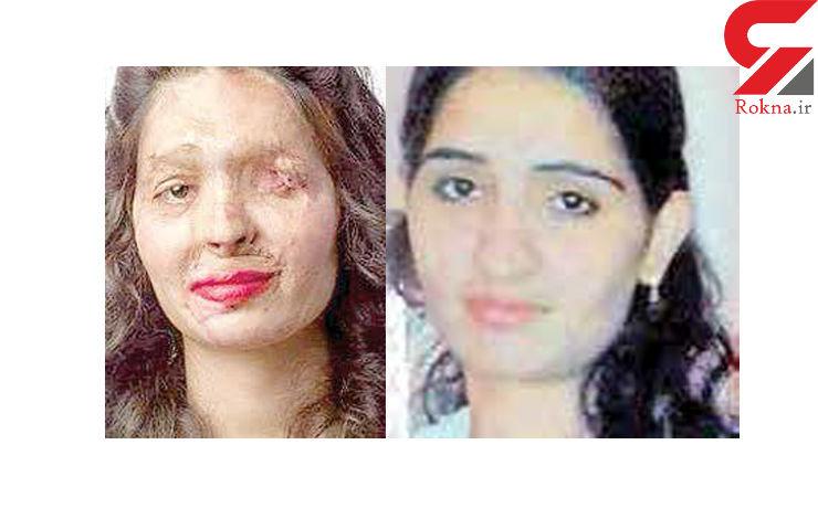 دخترقربانی اسید پاشی در هفته «مد» نیویورک