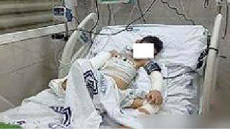 مرگ مغزی تلخ «محمدامین» با شکنجه های ناپدری + عکس