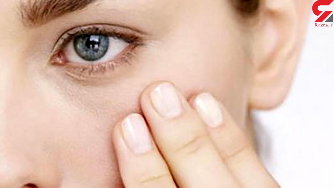 روغن و کرم های مخصوص و مفید برای دور چشم