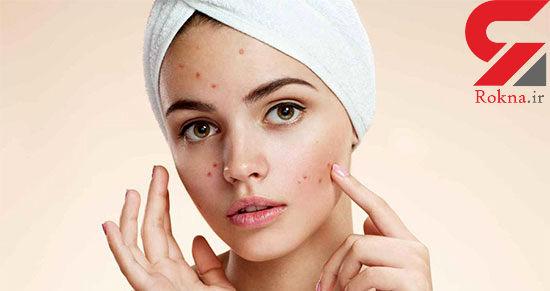 درمان جوش صورت با طلایی ترین راهکارها