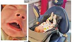 نوزادی با دندان خون آشامها