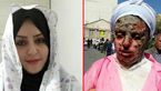 ترسناک ترین و بی رحم ترین خواستگار ایران در زندان تبریز ! + عکس دختر سوخته