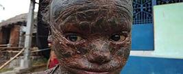 سرنوشت هولناک پسر 10 ساله ای که پوست او را باید کند !+عکس