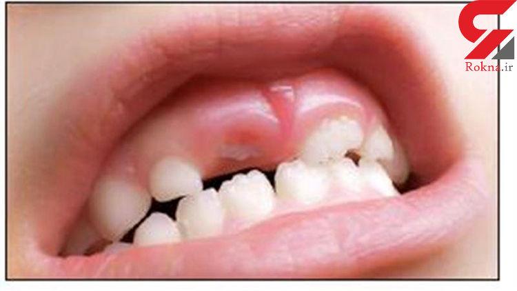 بزرگسالها دوباره دندان درمیآورند