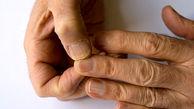 زنگ خطر دیابت با تغییر ناخن ها