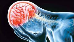 مبارزه با سکته مغزی با کنترل فشار خون