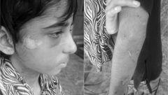 سرنوشت دردناک دختر 11 ساله در خانه جهنمی + عکس