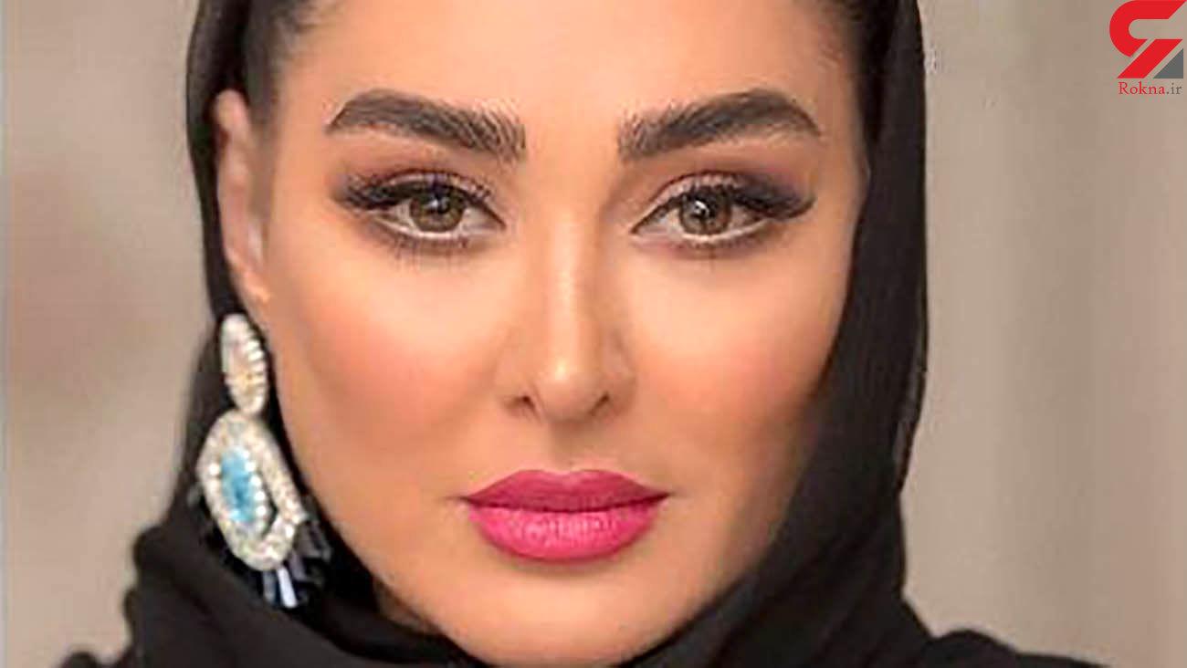 واکنش مردم به عمل زیبایی الهام حمیدی /  اعتراف خانم بازیگر ! + فیلم