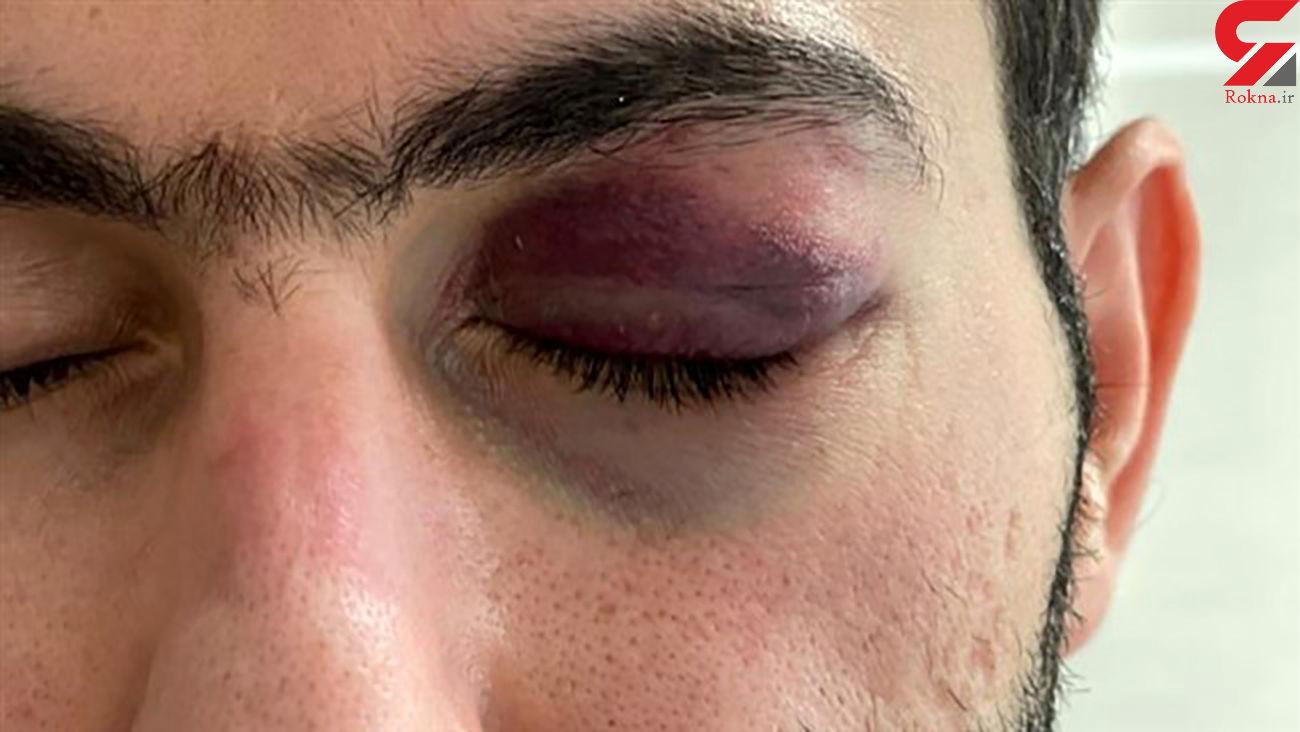 ماجرای حمله مرد جوان به دکتر تقی زاده در بندرعباس + عکس