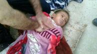 تصویری دردناک از دختر 3 ساله زابلی