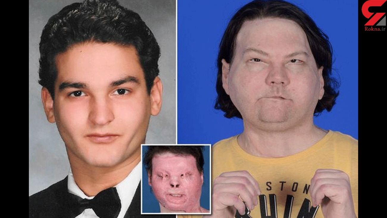 Man has world's first successful face and double hand transplant after horror crash