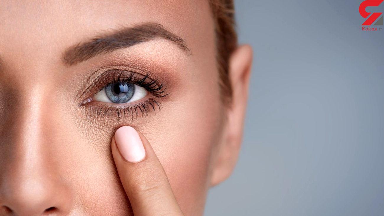 تشخیص غلبه بلغم و سودا در بدن از روی زیر چشم