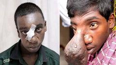 مغز این پسر از بینی اش بیرون زده بود! + عکس حیرت انگیز