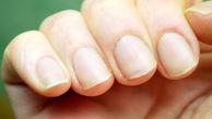 بیمارهایی که ناخن هایتان را از بین می برد