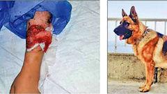 کابوس سگ های پارک لواسان همچنان در تعقیب دختربچه تهرانی! / وضعیت بهار وخیم است+ عکس