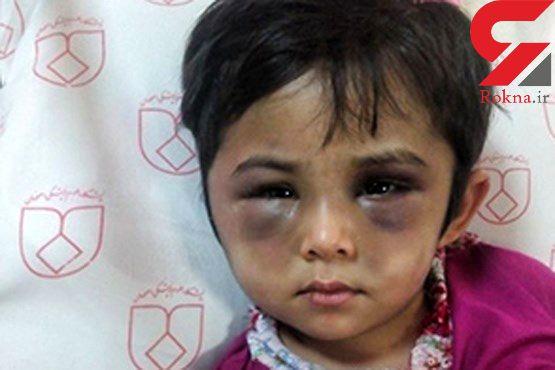 عکس وحشتناک از چهره کبود شده دختر اصفهانی / این ماجرا اشک همه را در می آورد