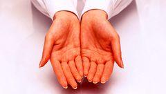 از علت تا درمان تعریق کف دست و پا