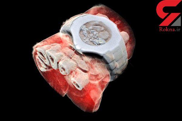 نخستین عکس سه بعدی رنگی اشعه ایکس از بدن انسان منتشر شد
