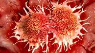 چرا به سرطان سینه مبتلا می شویم؟