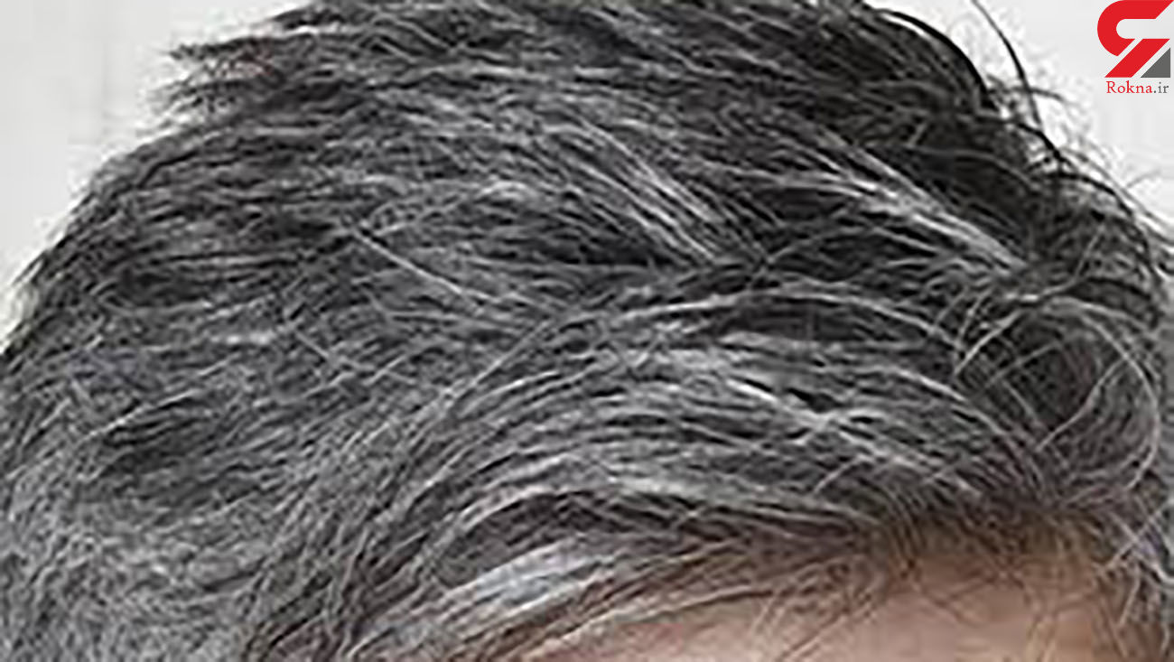 موهای سفید را می توان احیا کرد؟