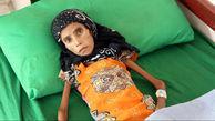 فاجعه / بستری شدن فاطمه ۱۲ ساله با ۱۰ کیلو وزن در بیمارستان