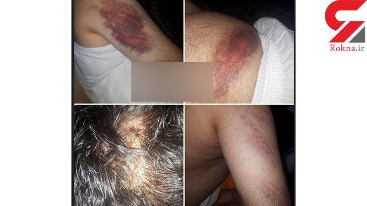 تصاویری از حمله خانواده دانش آموز شلاق خورده به معلم دبستان شهرستان کارون