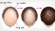 انواع روش های کاشت مو + قیمت