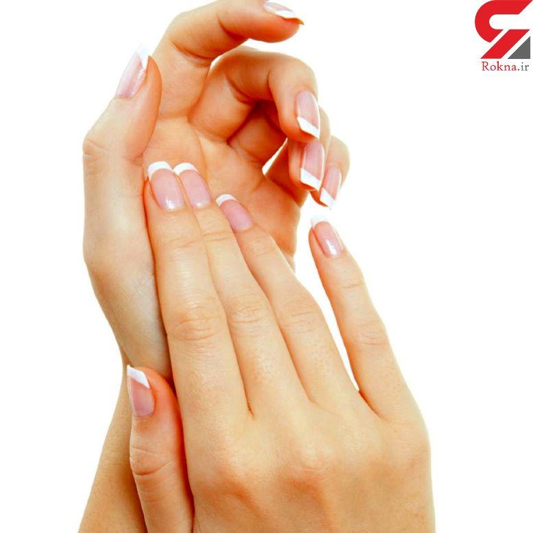 پوسته شدن پوست نشانه چه بیماری است؟