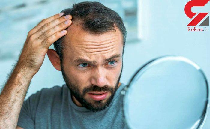 درمان نازکی موی سر با 8 ترفند طبیعی و موثر