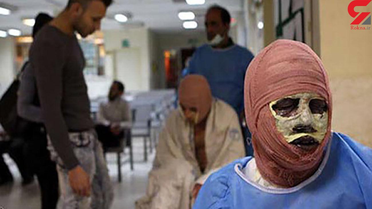 سوختگی شدید پسر 12 ساله شیرازی + علت