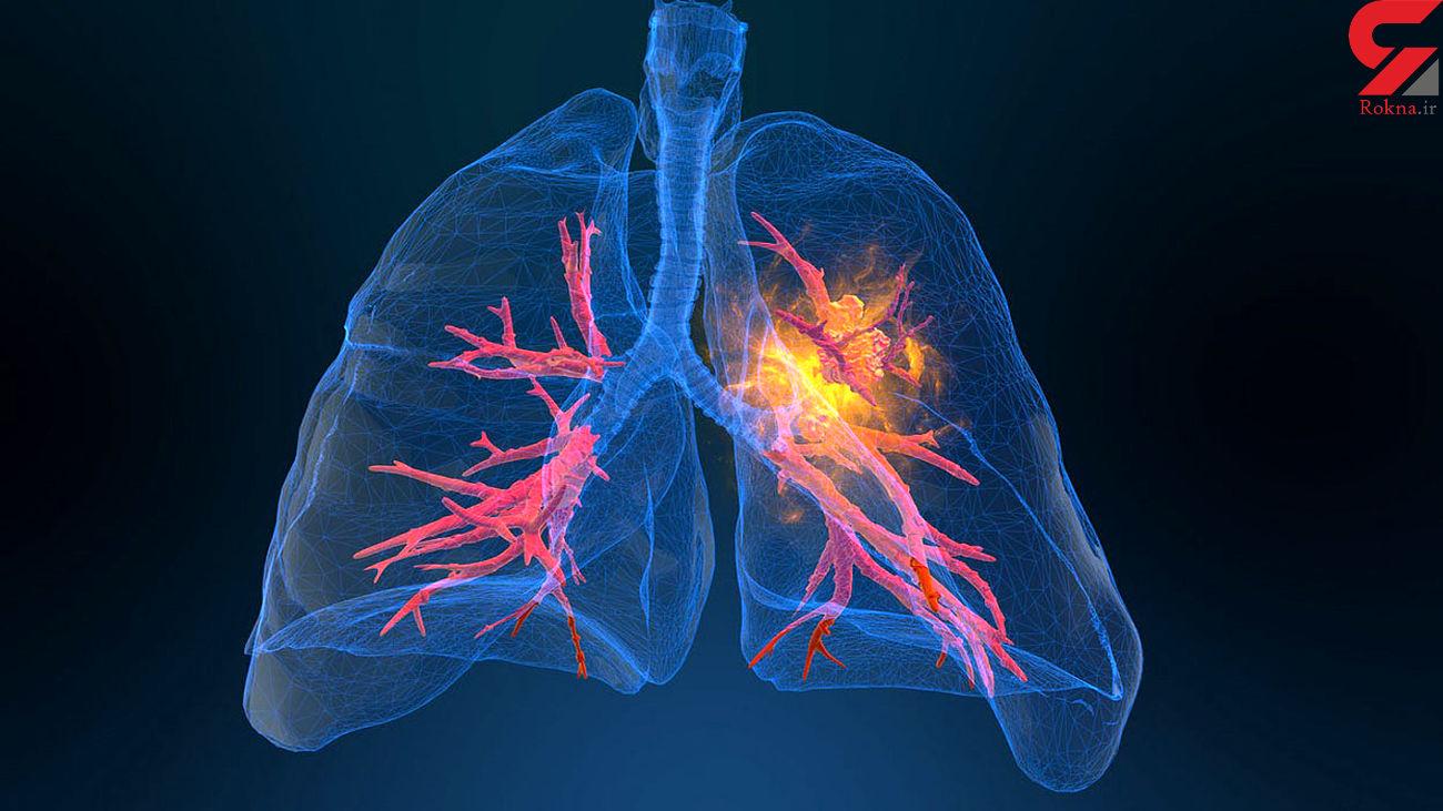توصیه های تنفسی به شما