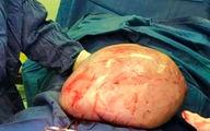 8 کیلو گرم توده اضافه از بدن بیمار گچسارانی خارج شد