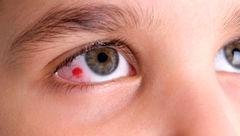 التهاب قرنیه و اختلال در دید