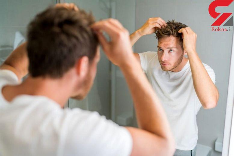 درمان ریزش مو در مردان با طلایی ترین ترفندها