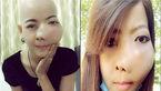 عاقبت شوم بیتوجهی دختر تایلندی به درد دندانش + عکس