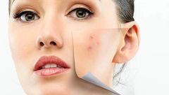 دلایل پنهان تیرگی پوست
