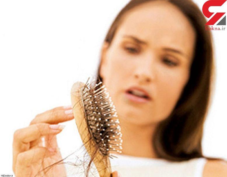 ریزش موی شدید  نشانه چه بیماری است؟