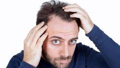 روش های فوری برای درمان موی چرب