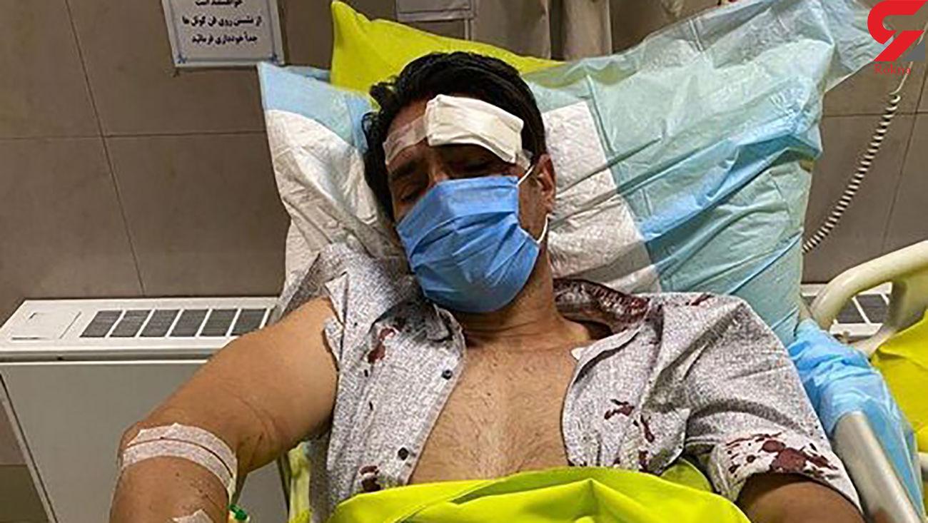 نخستین تصویر خونین فوتبالیست ملی پوش ایران پس از حادثه هولناک