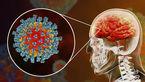 خطر سکته مغزی با کرونا ویروس
