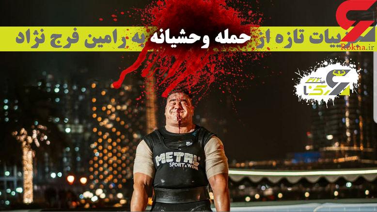 شناسایی عاملان شلیک خونین به قهرمانان قویترین مردان ایران ! + فیلم رامین روی تخت بیمارستان
