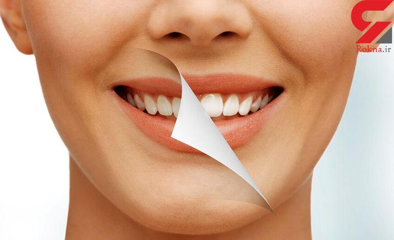 رهایی از جرم دندان با روش های طبیعی و بدون هزینه