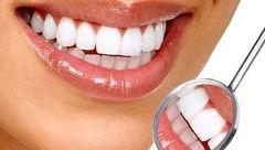 زیبایی دندان ها با یک ادویه