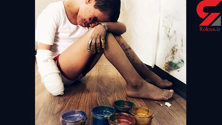 روزگار تلخ سعید 9 ساله که قربانی اتفاقی فجیع شد / 2 چشم و یک دست او از بین رفت+ عکس دردناک