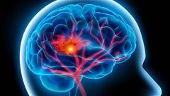 سردردهای مکرر نشانه این بیماری خطرناک