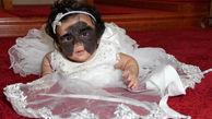 یک دختر با چهره ای عجیب در آمریکا به دنیا آمد+ عکس