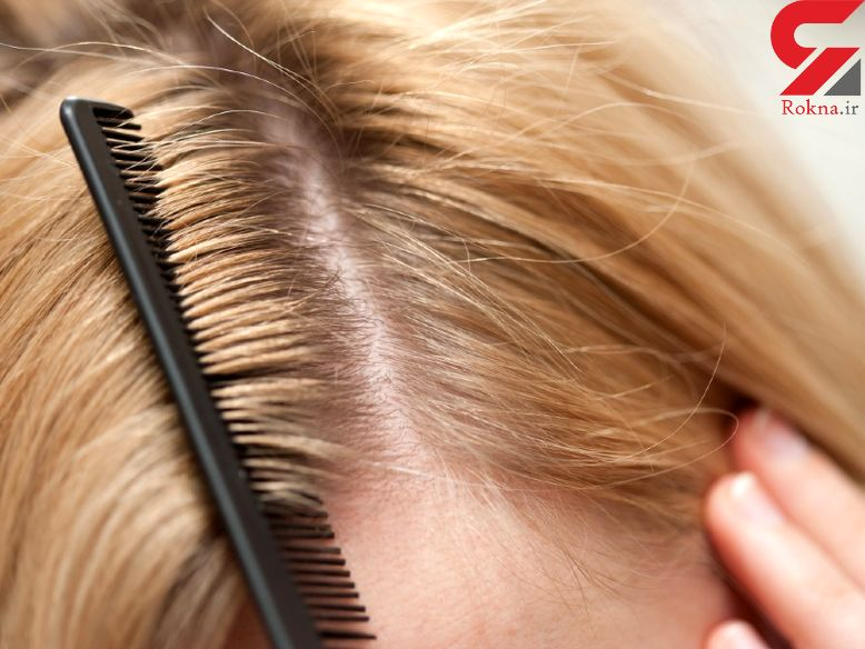 فرار از چربی و شوره موی سر با ساده ترین روش ها